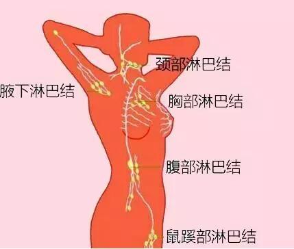 7个部位淋巴结异常,当心是病 -绿A